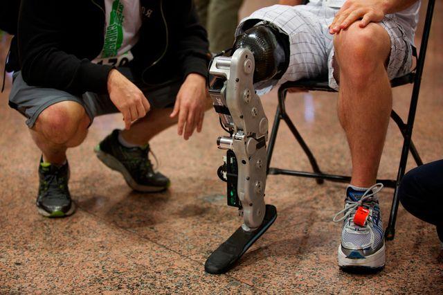 Первая в мире нейронная контролируемая бионическая нога