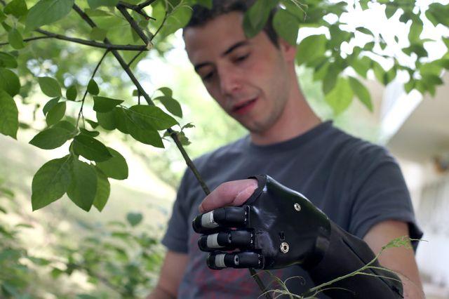Французский пациент держит ветку дерева его новой бионической рукой