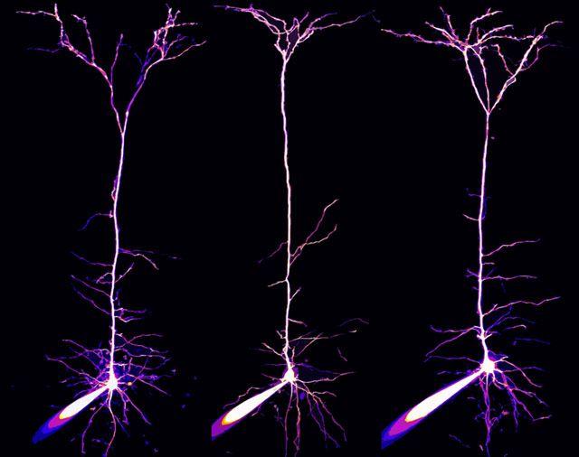 Пирамидальные нейроны и их дендриты, которые находятся в зрительной коре мозга мыши (40x)
