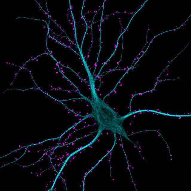 Гиппокампальный нейрон, получающий возбуждающих сигналы (63x)