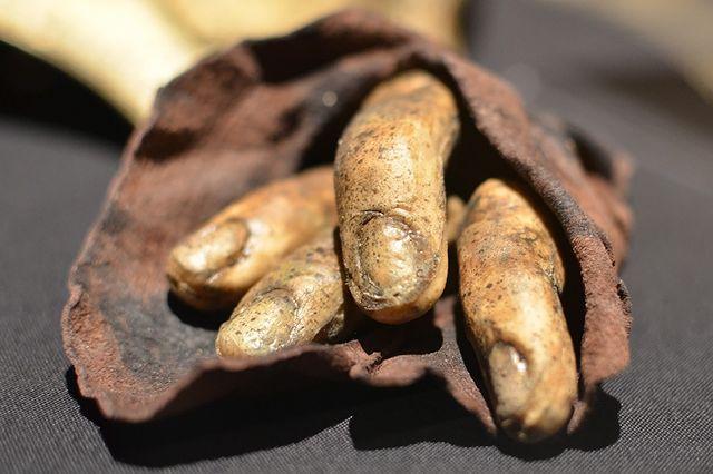 Кости пальцев Дейвоса Сиворта