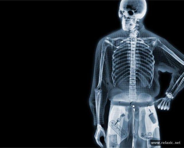 x-ray_00023